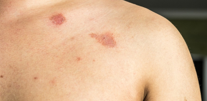 Ringworm is also called Tinea; it is an infection caused by different species of mold called