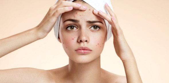 Do you think women care about how much acne a guy has on his face?