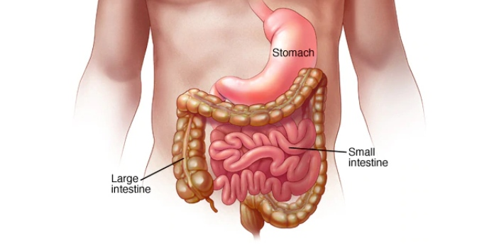 Stomach upset usually means cramps, nausea, and vomiting and would more accurately be called