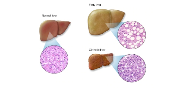 How many types of liver diseases are there?