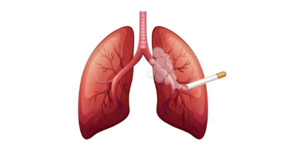 What is the cost of treatment of lung cancer in the USA?
