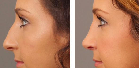 Rhinoplasty, commonly known as 'nose job' is a surgical procedure that reshapes the nose.