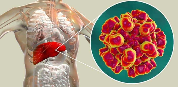 Hepatitis generally means inflammation of the liver and the liver can get inflamed by a lot of