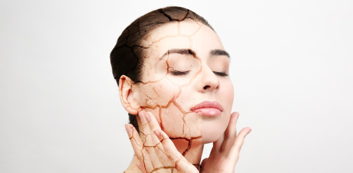 People are more prone to acne in the winter time, because the cold air makes the skin dry. However,