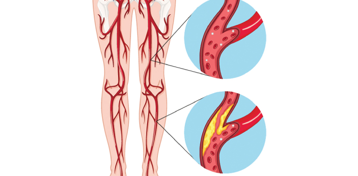 Peripheral Vascular Disease is a broad term which is used to describe the diseases of the blood