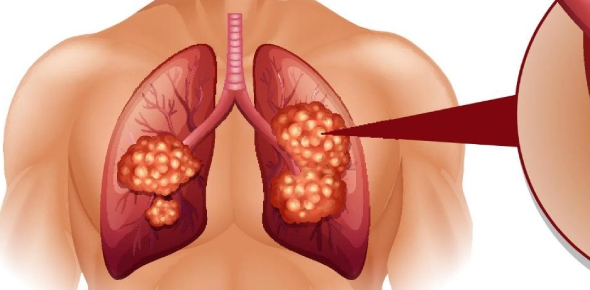 What are the two types of lung cancer?