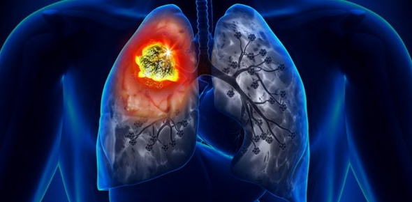 What breathing exercises should I try if I have lung cancer?