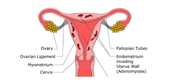 Adenomyosis refers to a disorder or problem that someone has due to there being something in the