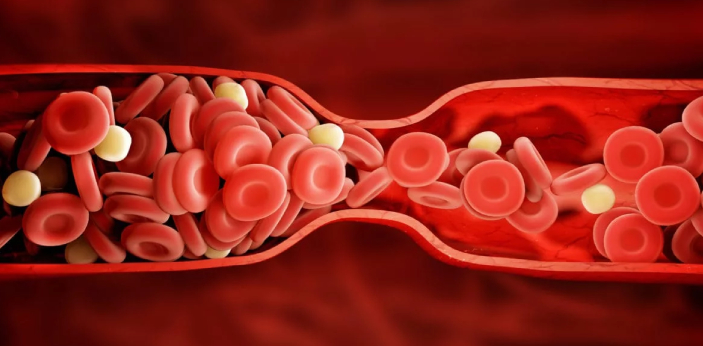A blood clot is a serious problem. Blood needs to flow from your heart to the organs that need