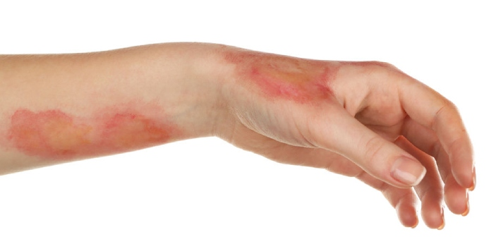 First degree burns are the most minor of all types of burns. Treatments for this kind of burn can