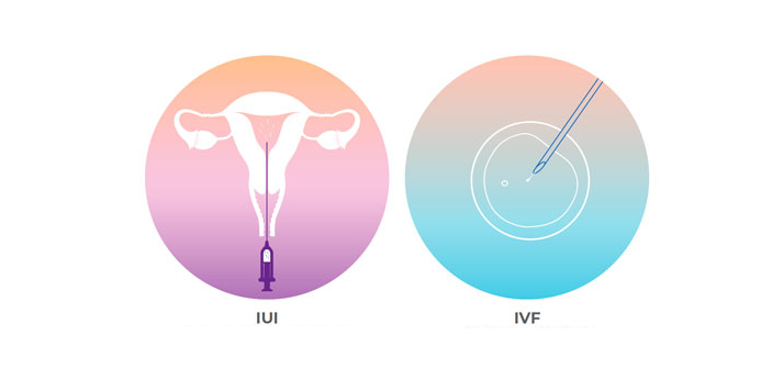 Yes, there is a major difference between IVF and IUI treatment; also, both are very different from