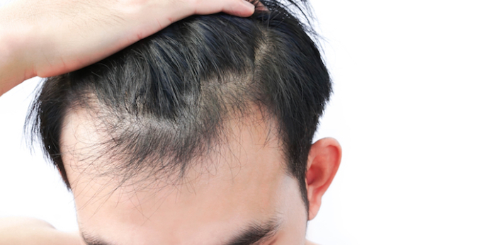 Yes, in most cases, when the baldness is not really strong, the hair can grow up by itself on the