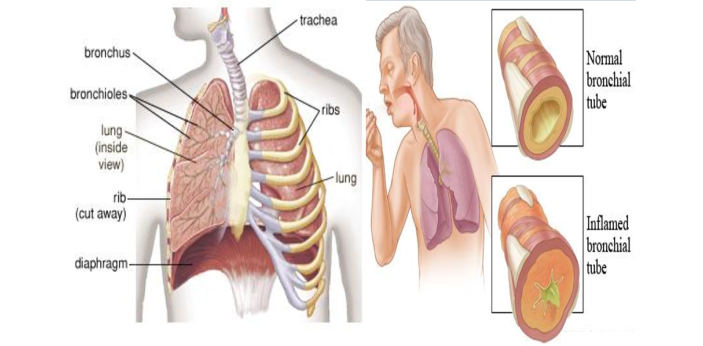 Generally, bronchitis is when the tubes that carry air to the lung become inflamed and irritated.