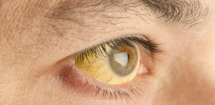 People may not immediately know this, but icterus is known as yellow jaundice. When a person has an