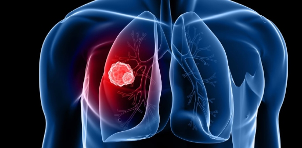 Why do people smoke even if it causes lung cancer?