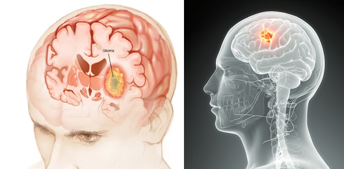 Gliomas and glioblastomas are two classifications of nervous system tumors. Glioma is a tumor which