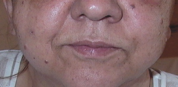 Will taking creatine cause facial bloating?