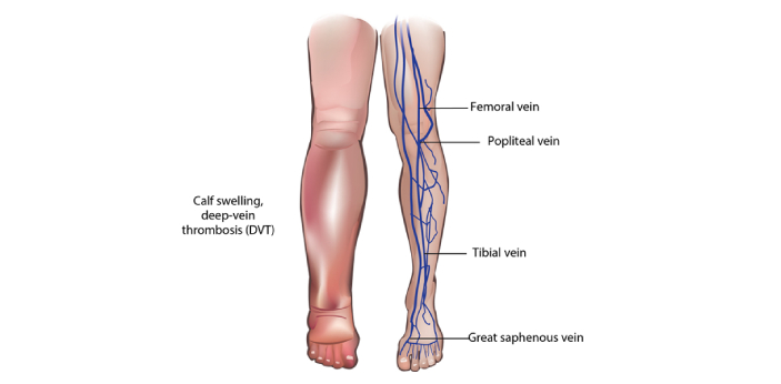 Thrombohpheblitis is known to be a condition wherein there are different blood clots that form in