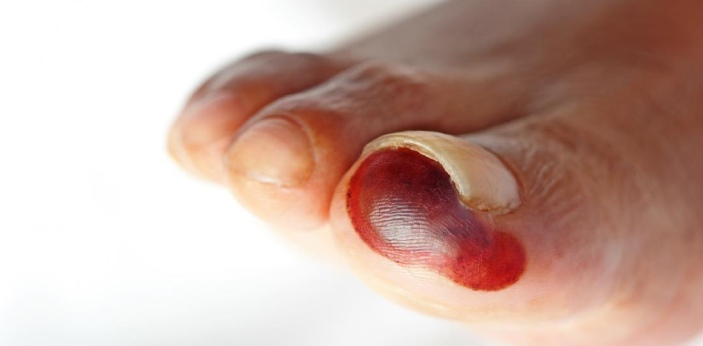 Necrosis and Gangrene are cell related problems and tissues related problems respectively. The two