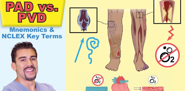 PVD is the short form of Peripheral Vascular Diseases, while PAD is the short form of peripheral