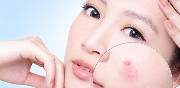 Acne is considered as a common occurrence and a skin ailment which most people have or have