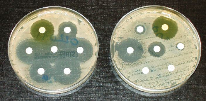 Antibiotics are biochemical substances that kill and stop the growth of bacteria. They work by
