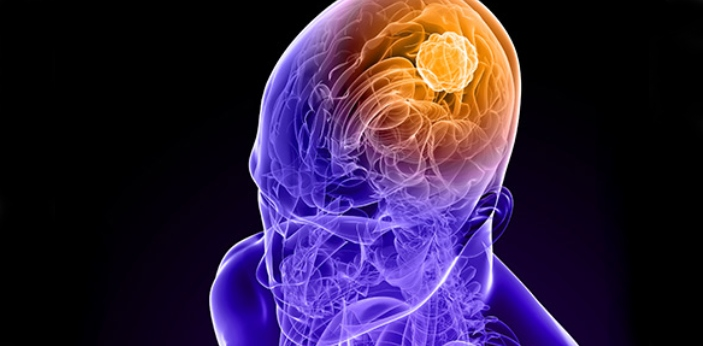 When you say brain tumor, this is known to be the type of cells that may grow in the brain. There