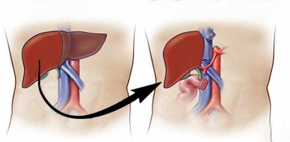 What is the life expectancy after liver transplant?