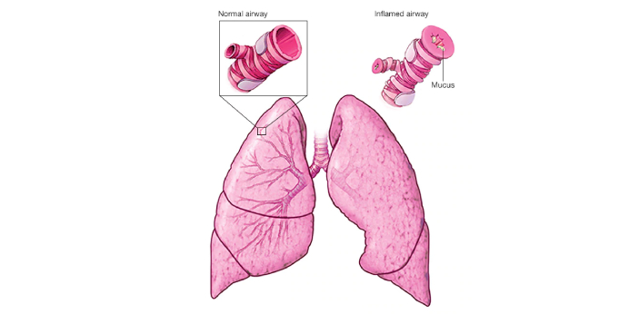 The exact reason why asthma is worse at night is not clear, but there is a popular explanation of