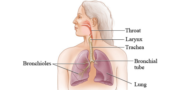 Pneumonia simply means a chronic or acute inflammation of the lungs caused by a virus, bacteria,