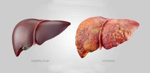 Is liver cirrhosis curable?