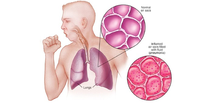 Pneumonia is an infection of the lungs. This infection can cause the lungs to fill with liquid. It