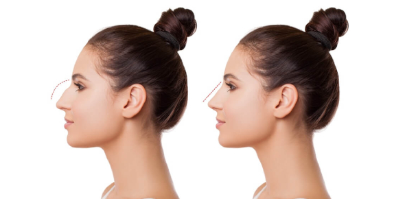 There are many different types of nose surgeries. Some are safe and some pose extreme risks so it
