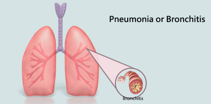Pneumonia and Bronchitis are two medical conditions which affect the lungs. While there symptons