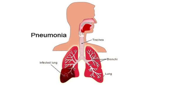 How does pneuomonia affect the lungs?