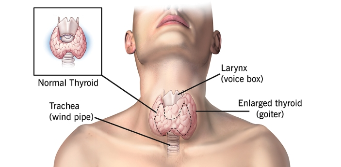 Hashimoto is a particular type of disease which occurs when the immune system in the body attacks