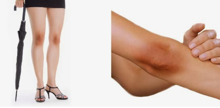 Elbow and Knee are two important joints in the body. Elbow is the joint between the upper arm and